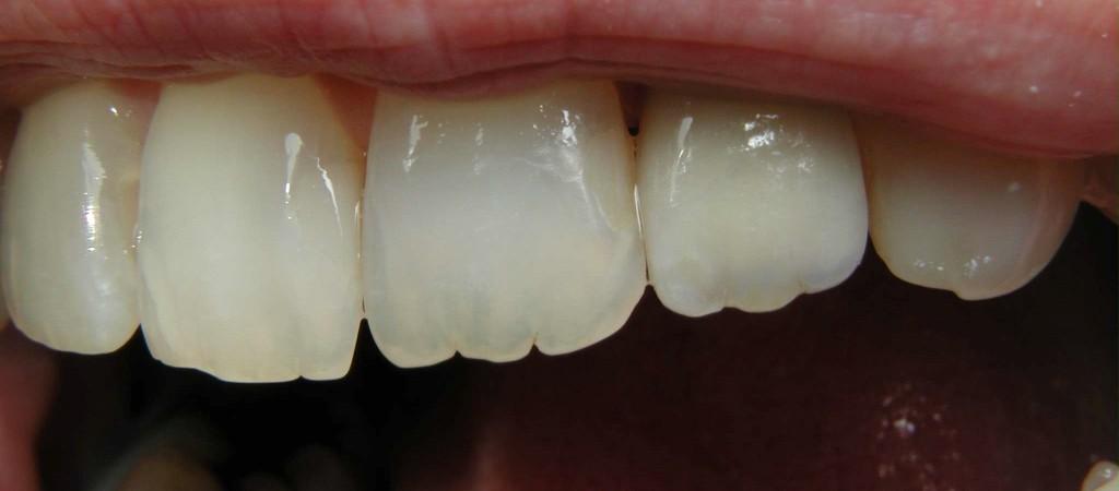 Abbink Tandtechnisch Laboratorium